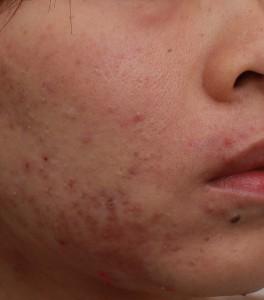 痘疤術前|新竹愛生美皮膚科醫學美容診所