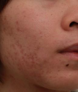 第一次雷射除痘疤治療|新竹愛生美皮膚科醫學美容診所