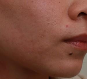 第三次雷射除痘疤後|新竹愛生美皮膚科醫美診所