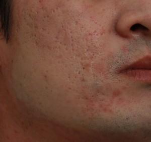 飛梭雷射處理凹洞痘疤前|新竹愛生美皮膚科診所