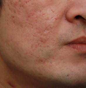 飛梭雷射處理凹洞痘疤後|新竹愛生美皮膚科醫學美容診所