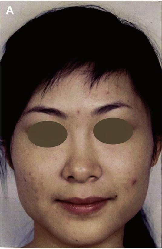肉毒瘦臉前|新竹愛生美皮膚科醫學美容診所