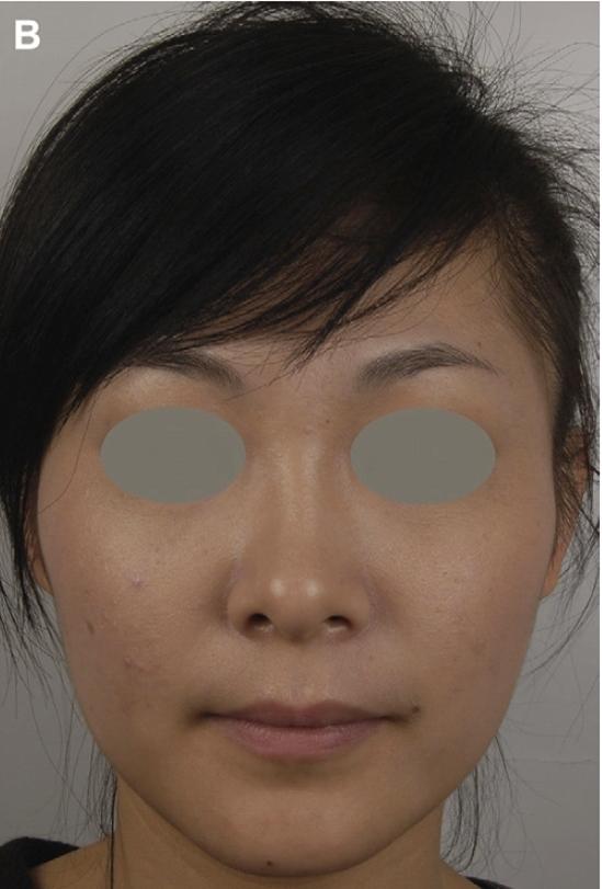肉毒瘦臉後|新竹愛生美皮膚科醫學美容診所