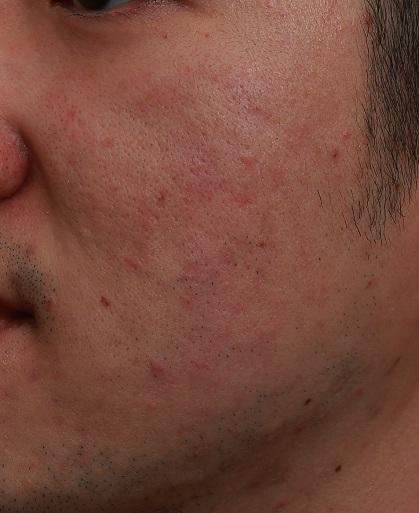 雷射處理臉泛紅前|新竹愛生美皮膚科醫學美容診所
