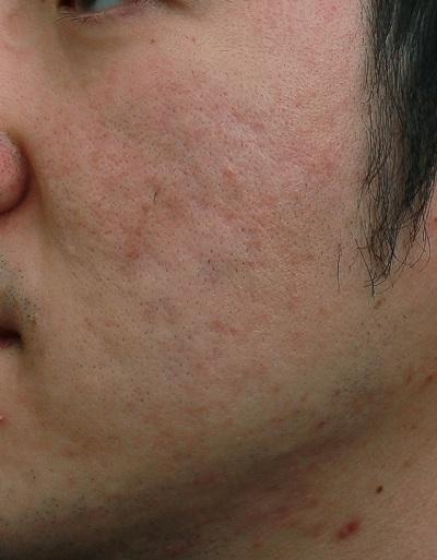 雷射處理臉泛紅後|新竹愛生美皮膚科醫學美容診所