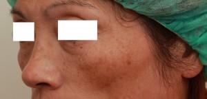 玻尿酸填蘋果肌左側術前|新竹愛生美皮膚科醫學美容診所