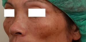 玻尿酸填蘋果肌左側術後|新竹愛生美皮膚科醫學美容診所