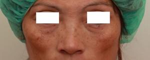 玻尿酸填蘋果肌術前|新竹愛生美皮膚科醫學美容診所