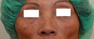 玻尿酸填蘋果肌術後|新竹愛生美皮膚科醫學美容診所