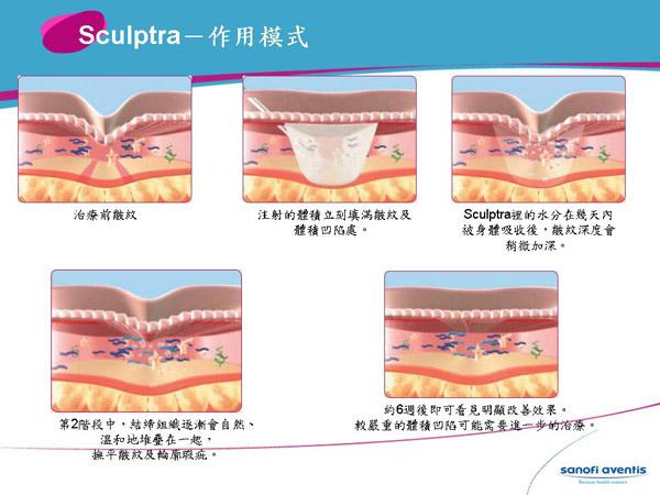 sculptra作用模式|台灣新竹愛生美皮膚科診所