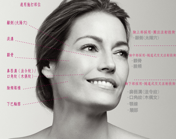sculptra適用施打部位|台灣新竹愛生美皮膚科醫學美容診所