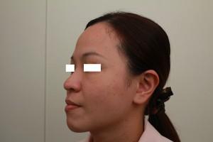 微晶線拉提術前-左邊45度|新竹愛生美皮膚科醫學美容診所