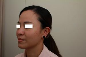 微晶線拉提術後-左邊45度|新竹愛生美皮膚科醫學美容診所