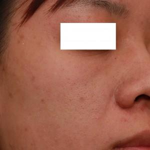 飛梭雷射治療毛孔粗大前|新竹愛生美皮膚科醫學美容診所