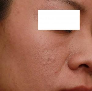 飛梭雷射治療毛孔粗大後|新竹愛生美皮膚科醫學美容診所