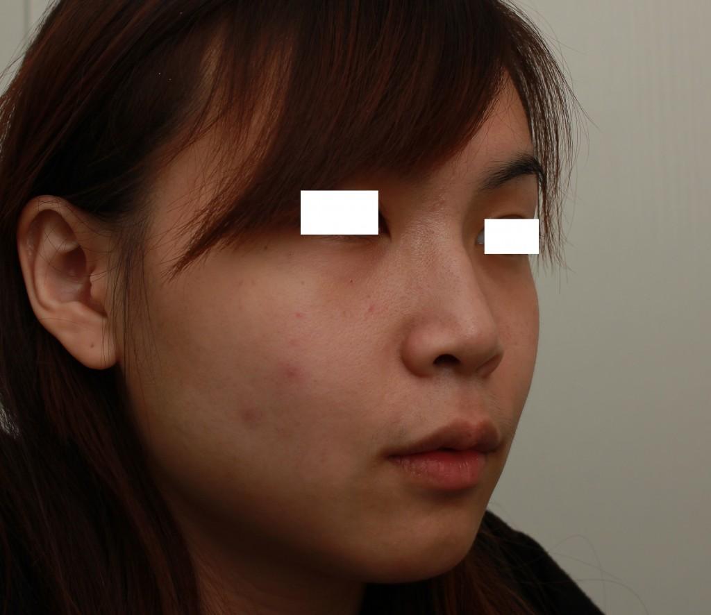 微晶瓷 下巴+鼻子 術前右側45度|新竹愛生美皮膚科醫學美容診所