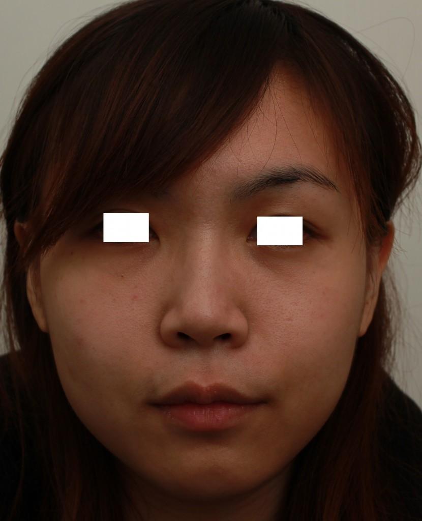 微晶瓷 下巴+鼻子 術前正面|新竹愛生美皮膚科醫學美容診所