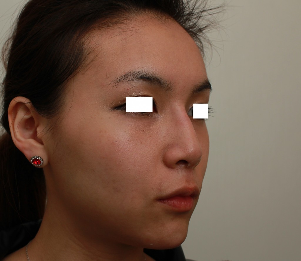 微晶瓷 下巴+鼻子 術後右側45度|新竹愛生美皮膚科醫學美容診所