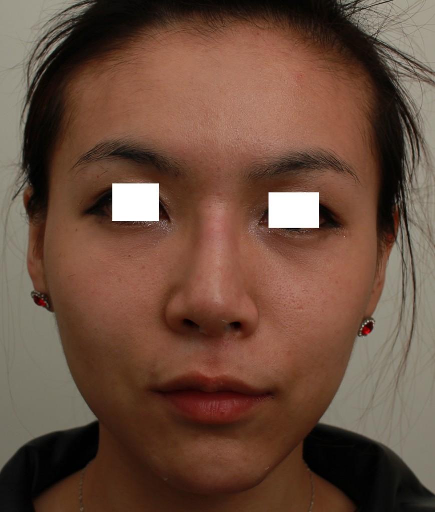 微晶瓷 下巴+鼻子 術後正面|新竹愛生美皮膚科醫學美容診所
