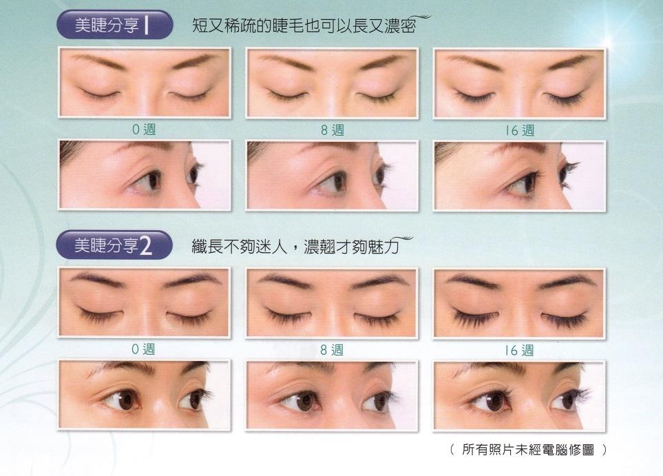 Latisse雅睫思睫毛生長液-案例|新竹愛生美皮膚科醫學美容診所