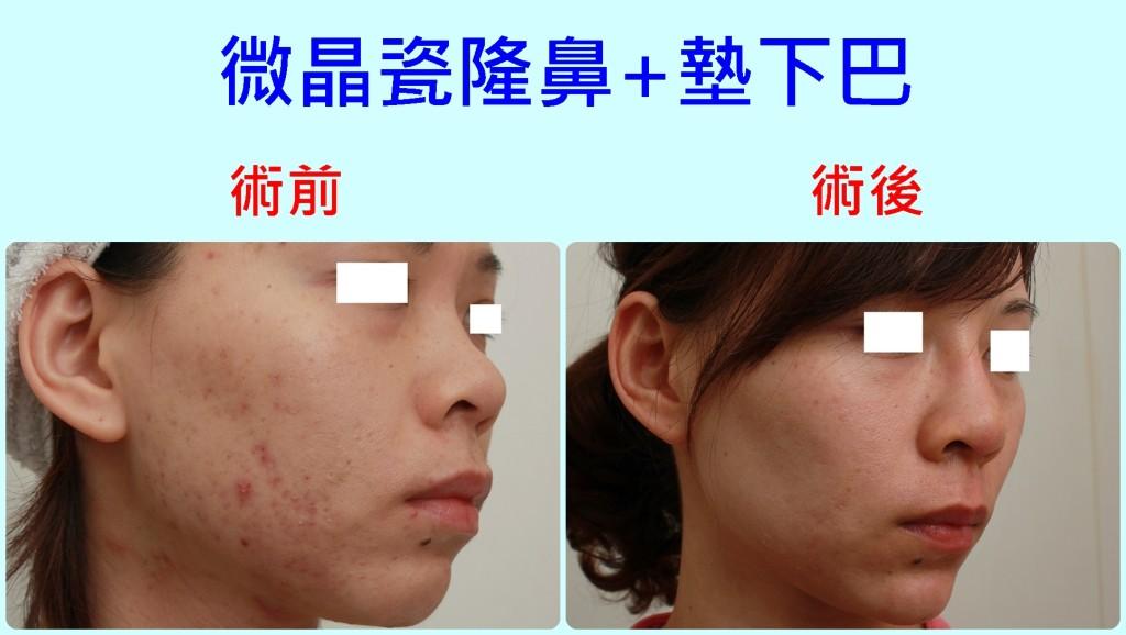 微晶瓷隆鼻+墊下巴,V臉,小臉|新竹愛生美皮膚科醫學美容診所
