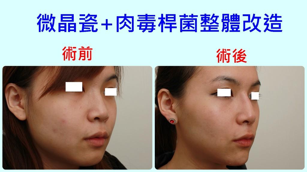 微晶瓷+肉毒,V臉,小臉|新竹愛生美皮膚科醫學美容診所